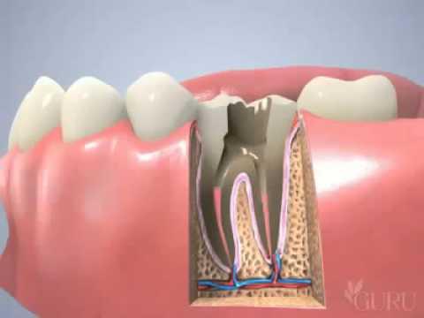 ▶  Traitement de canal traitement endodontique)