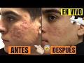 Download CREMA ELIMINÓ EN VIVO LOS HUECOS DE ACNÉ Y CICATRICES EN 2 MINUTOS | INSTANTLY AGELESS (Sin Editar)