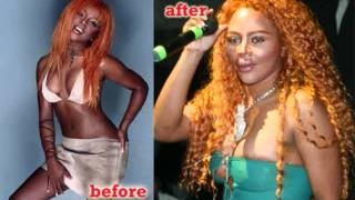 Top 10 Before and After Celebrity Plastic Surgery Gone wrong