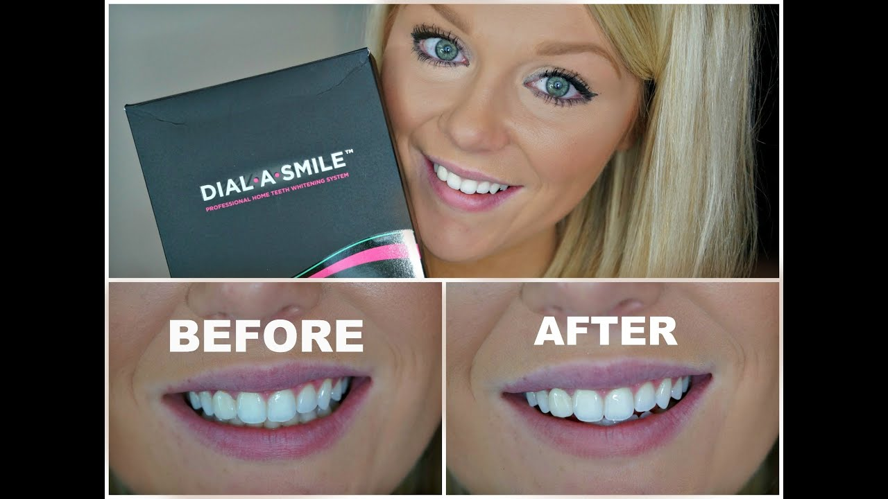 Professional Teeth Whitening at Home Whitening Lightning