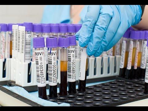 Analyse de sang : que signifie le dosage de l'HBA1C (hemoglobine glyquée) ?