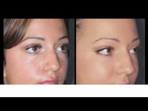 Eye Bags and Dark Circles Surgery by Dr Bernard Hayot