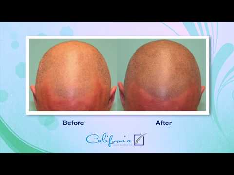 Scalp Micro Pigmentation Explained by Sara Wasserbauer, MD