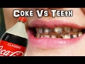 Can you PEEL a Tooth? Coke Vs Teeth