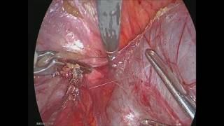трудный гидросальпинкс, спаечный процесс