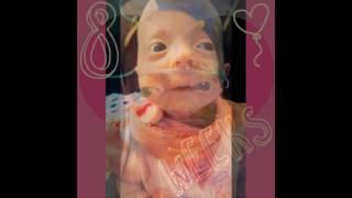 Katie-rae Trisomy 18 Awareness