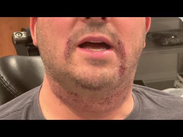 Dallas Beard to Beard FUE Hair Transplant Testimonial