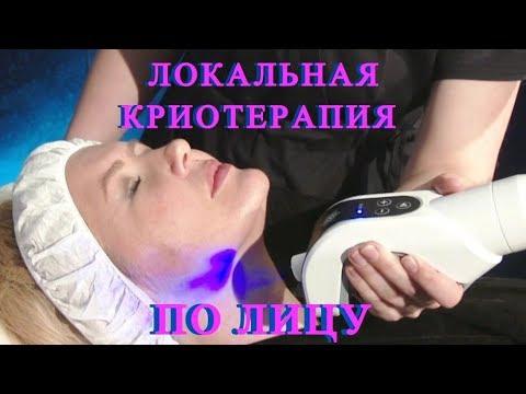 Криотерапия жидким азотом по лицу