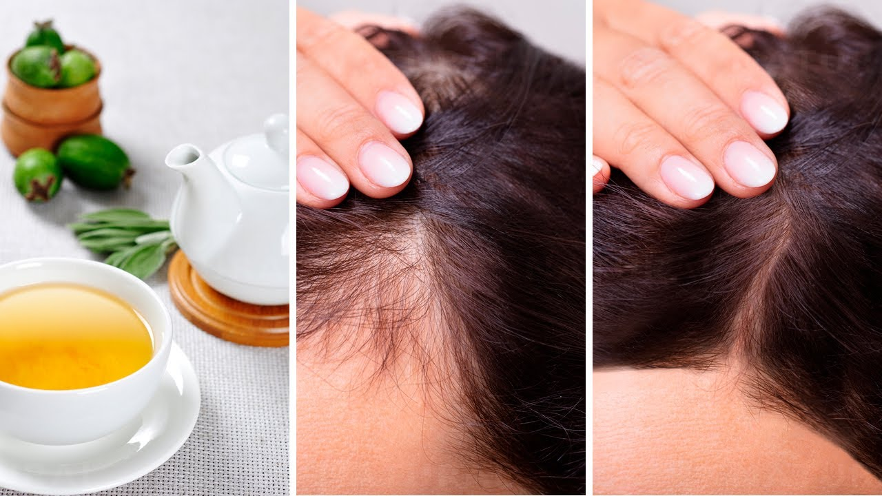 Stop Hair Loss and Make It Grow Faster with Guava Leaves