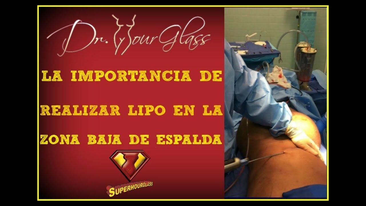 Liposucción en flancos y espalda, por el Dr. Curvas: Houston, Austin ...