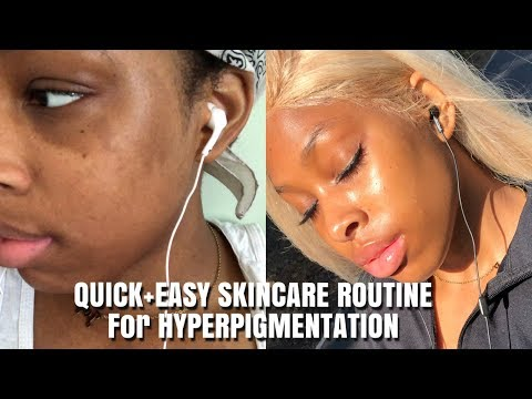 HOW TO GET RID OF HYPERPIGMENTATION FAST(BROWN/BLACK GIRL FRIENDLY )