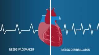 Exploring Your Treatment Options for Sudden Cardiac Arrest