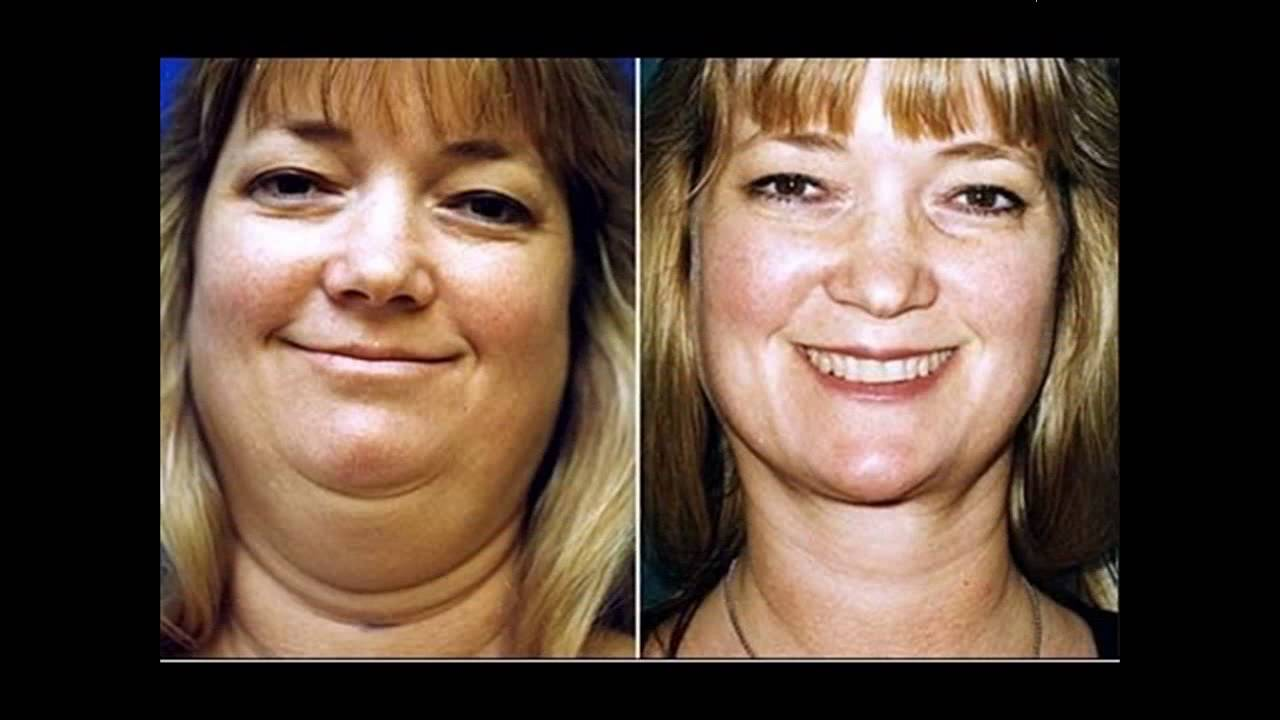 Weight loss surgery mandeville image 8