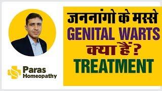 जननांगों के मस्से | GENITAL WARTS| CONDYLOMA | ANOGENITAL WARTS| Homeopathic medicine for warts