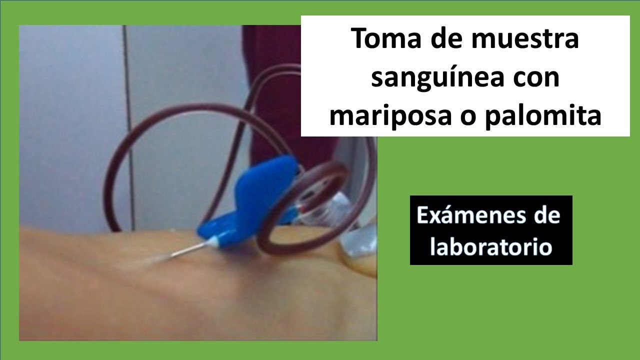 Toma de muestra sanguínea. Phlebotomy / Venipuntcture With Butterfly.