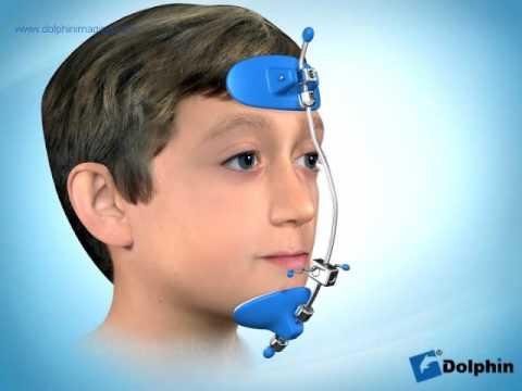 Reverse-Pull Headgear