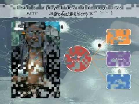 Odontología Forense Lesiones por proyectil de Arma de fuego