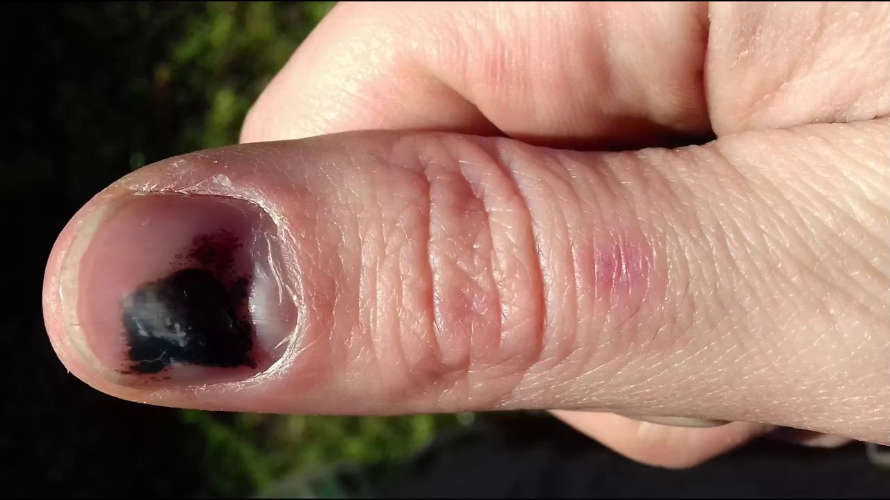 Bruised Thumbnail Growing Out Time Lapse - YouTube