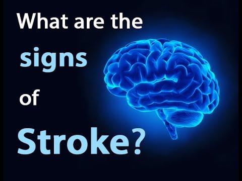Stroke, Rehab, Sakit ng Ulo, Manhid Katawan, Tumor sa Utak – ni Dr Epi Collantes (Neurologist) #10