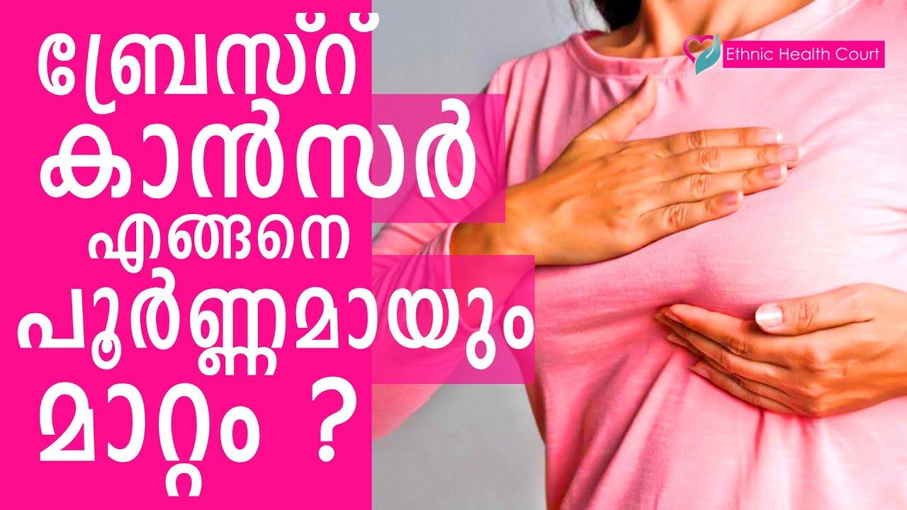 ബ്രേസ്റ് കാൻസർ എങ്ങനെ പൂർണ്ണമായും മാറ്റം | Complete cure for breast cancer | Ethnic Health Court