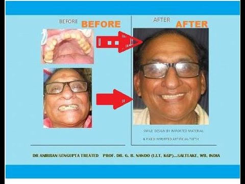 SMILE DESIGN & BRIDGE OF PROF. DR.G.B.NANDO (I.I.T,Kharagpur. )BY DR ANIRBAN SENGUPTA