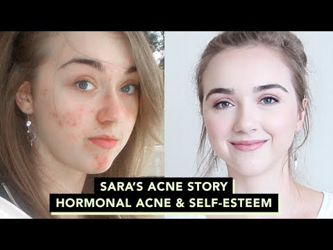 🌴How I Cleared Up My Skin : Sara's Acne Story • Confidence & Self-esteem with Acne