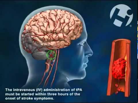 tissue plasminogen activator therapeutic use