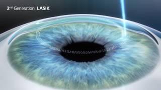 3rd Generation SMILE Laser Eye Surgery - Revolutionary bladeless procedure