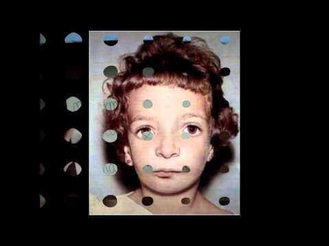crecimiento craneo facial condilar