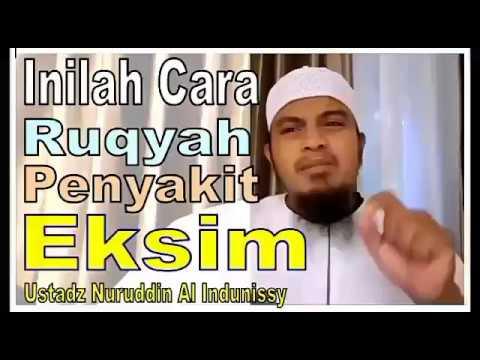 Ini cara ruqyah penyakit eksim dan gatal-ustadz nuruddin al indunissy-2017-ruqyah palembang