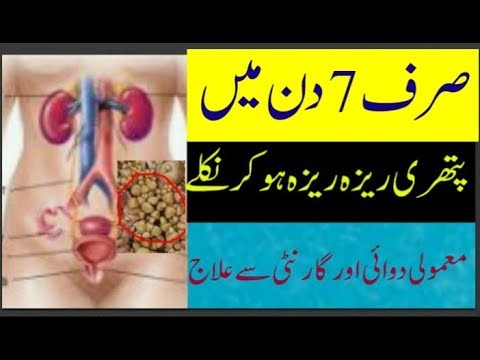 kidney stone treatment at home