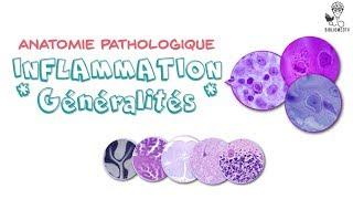 """Anatomie Pathologique - Inflammation """"Généralités"""""""
