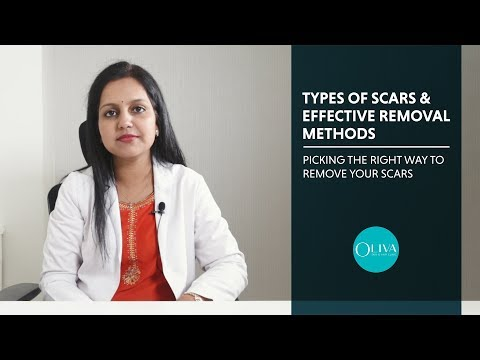 Different Types Of Acne Scars And How To Remove Each Type