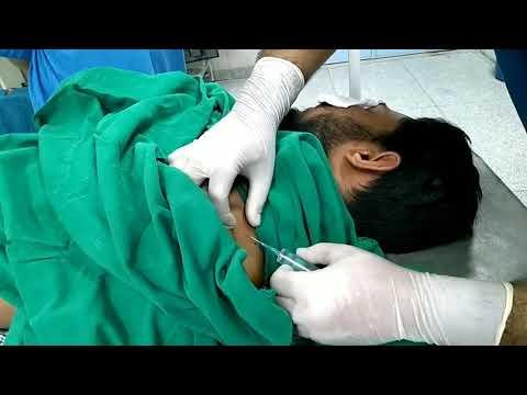 Nerve locator guided supraclavicular brachial plexus block