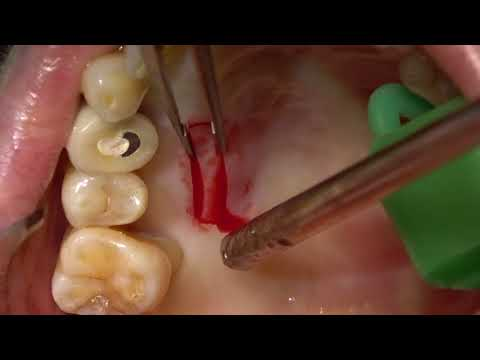 Mixed Epithelial-Connective Tissue Graft Harvesting From Palate