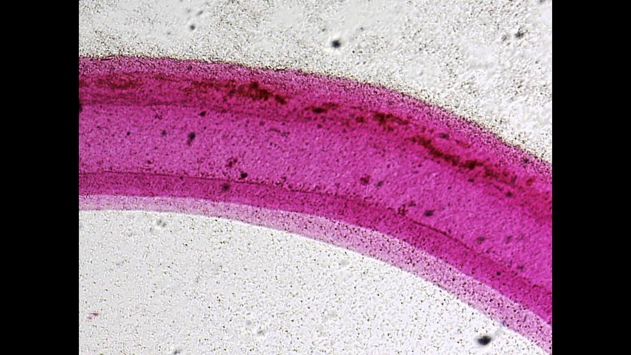 Pärchenegel mänlich mikroskop hd video deutsch youtube