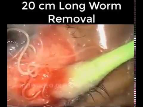 20 cm long Worm Removal from Eye | Technical Biology