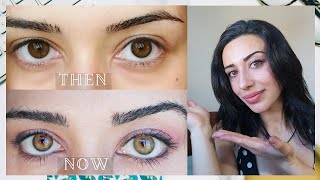 How My Eye Color Changed From Brown To Hazel Green Naturally PART II (detailed explanation) screenshot 1