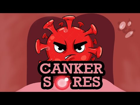 What is CANKER SORES? Causes, Signs and Symptoms, Diagnosis and Treatment.
