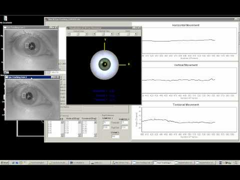 3D Video Oculography - Medical Eye Tracking