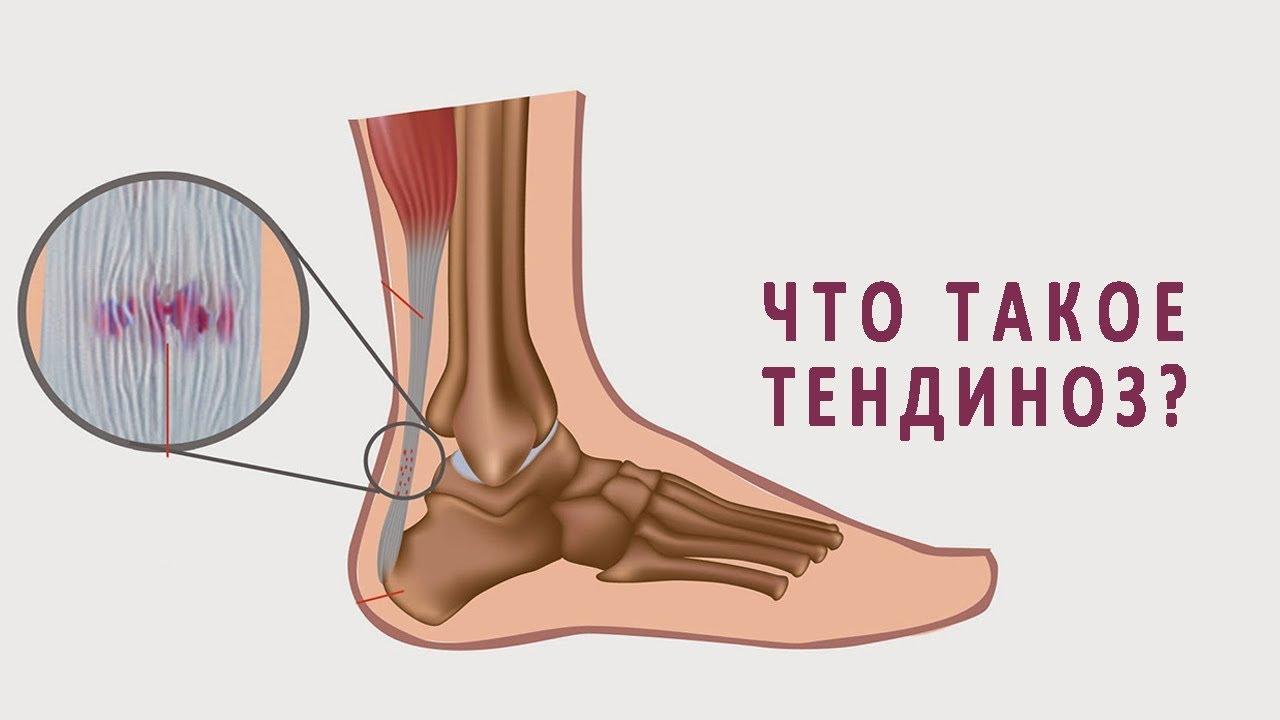 Тендиноз голеностопного сустава связки суставы фармакология