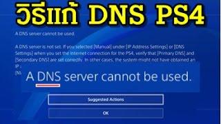 วิธีแก้ A DNS server cannot be used. + อินเตอร์เน็ตเถียรขึ้น PS4