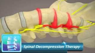 Spinal Decompression Therapy | Integrated Spinal Solutions - Reno Chiropracters