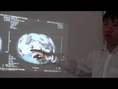 20140228 CT một trường hợp ung thư dạ dày
