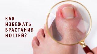 Как избежать врастания ногтей
