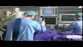 De radiofrecuencia cierre ablación rápido por de catéter