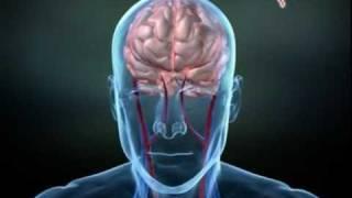Berdengkur bukan setakat mengganggu tidur , ia mungkin tanda penyakit berbahaya. Sleep Apnea- Dr. On.