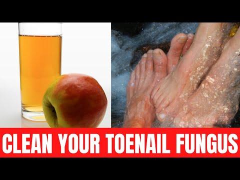 how-to-cure-toenail-fungus