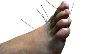 Gout Treatment: Acupuncture / Laser