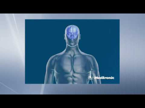 Deep Brain Stimulation .... How does DBS work